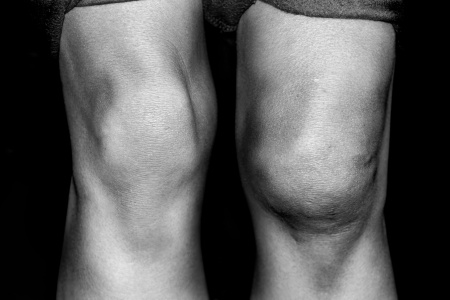 swollen-knee